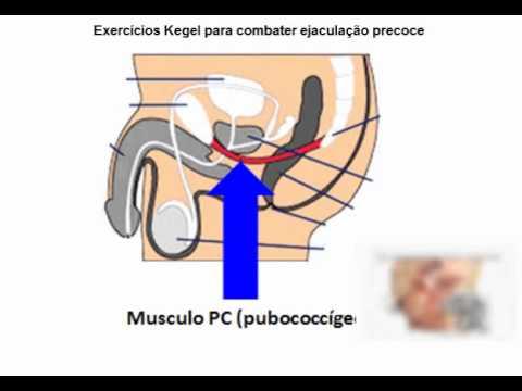 musculo-pubococcigeos-ejaculacao-precoce-tratamento-natural