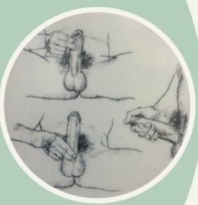 tecnica-aperto-ejaculacao-precoce